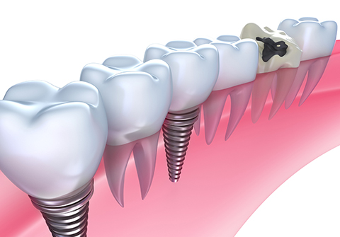 なぜ吉田歯科医院でインプラントを入れなければならないのか?