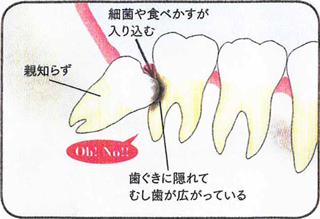 隣の歯がむし歯に!