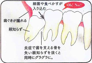 歯を支える骨を失った!(智歯周囲炎)