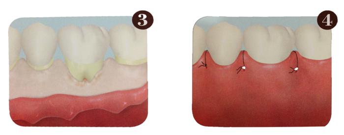 フラップ手術+デブライドメント