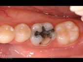 虫歯の治療前