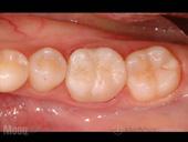 虫歯の治療後