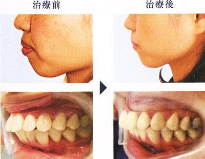20歳代女性の上顎前突の解消