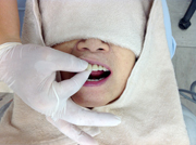 下顎吸着総義歯