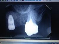 術後X-ray