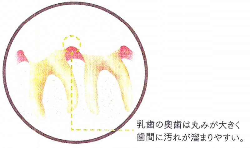 むし歯になりやすい歯って?①