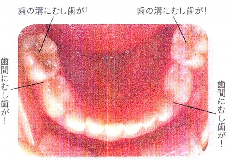 汚れの溜まりやすい奥歯の歯間や溝に要注意!
