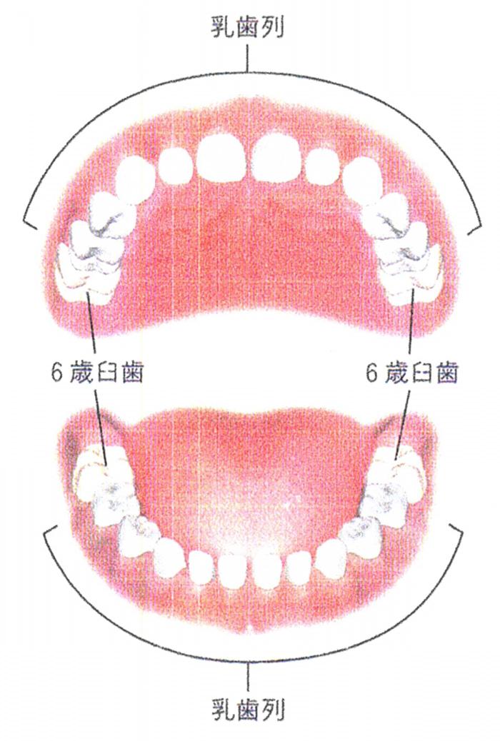 6歳臼歯はなぜむし歯になりやすい?