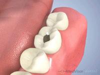 虫歯二次象牙質1