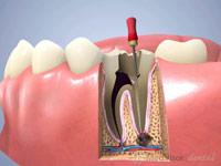 歯根 根管白歯1