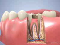 歯根 根管白歯2