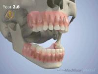 小児 歯の萌出1