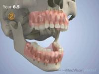 小児 歯の萌出2