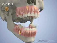 小児 歯の萌出3