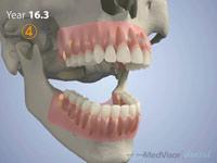 小児 歯の萌出4