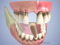 歯周組織の破壊